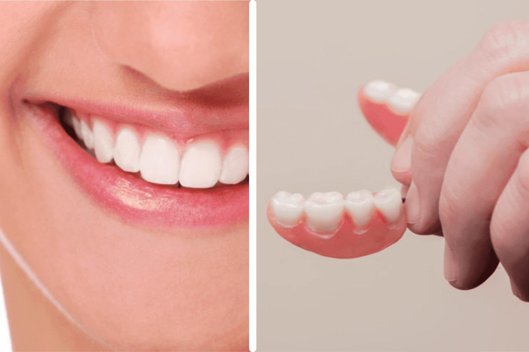 Fazer Implantes Dentários ou Prótese Removível?